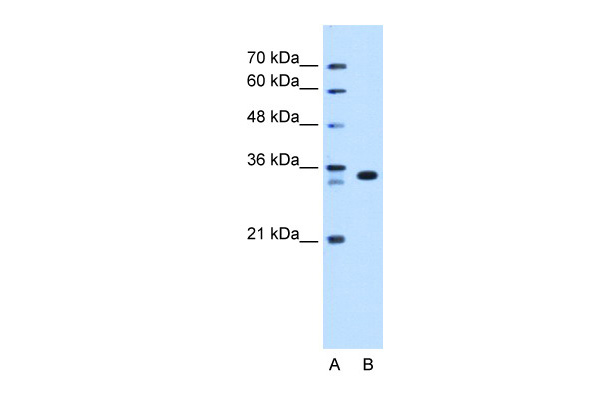 ARGFX antibody - N-terminal region (ARP47512_T100) in Human HepG2 cells using Western Blot