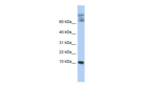 CKLF antibody - N-terminal region (ARP47947_P050) in Human Jurkat cells using Western Blot