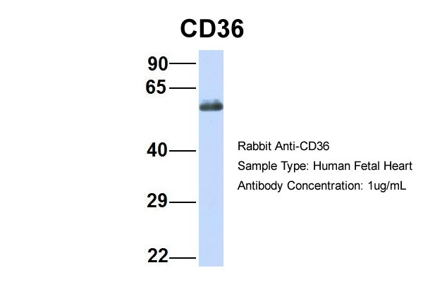 CD36 antibody - N-terminal region (ARP48127_P050) in Hum. Fetal Heart cells using Western Blot