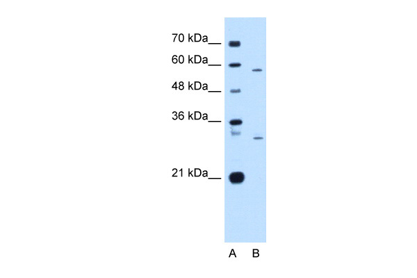 CD36 antibody - N-terminal region (ARP48129_P050) in Human HepG2 cells using Western Blot