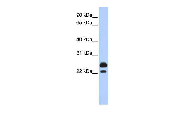 AK1 antibody - middle region (ARP48149_P050) in Human Muscle cells using Western Blot