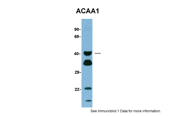 ACAA1 antibody - N-terminal region (ARP48177_P050) in Human Liver cells using Western Blot