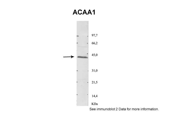 ACAA1 antibody - N-terminal region (ARP48177_P050) in Rat purified peroxisomes cells using Western Blot
