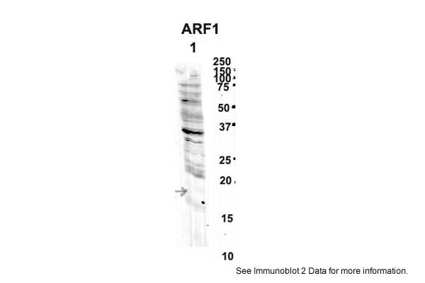 ARF1 antibody - middle region (ARP48184_P050) in Human , Mouse Brain cells using Western Blot