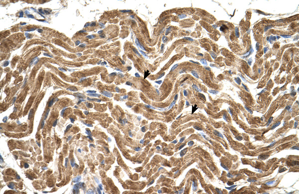 ATP5B antibody - N-terminal region (ARP48185_T100) in Human Muscle cells using Immunohistochemistry