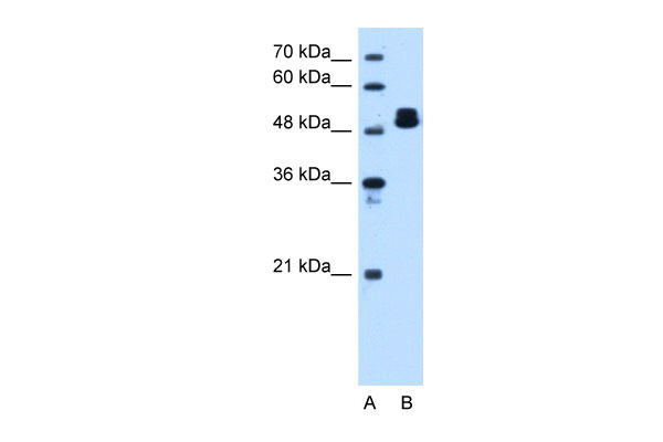 ATP5B antibody - C-terminal region (ARP48186_T100) in Human HepG2 cells using Western Blot