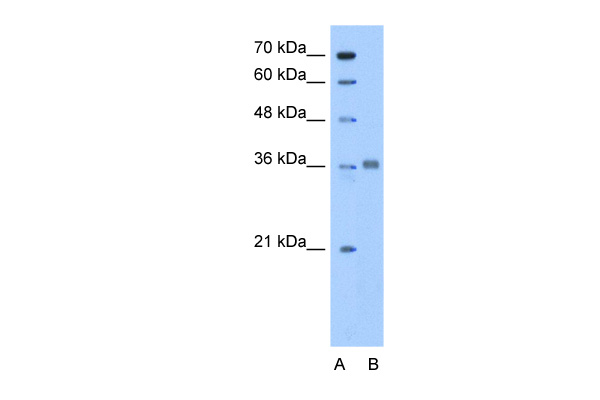 ALDOC antibody - N-terminal region (ARP48273_P050) in Human HepG2 cells using Western Blot