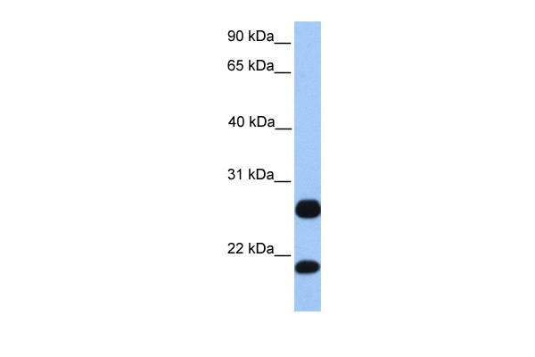 C1orf63 antibody - C-terminal region (ARP48388_P050) in Human HepG2 cells using Western Blot