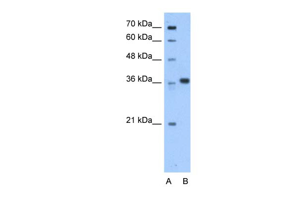 AASDHPPT antibody - C-terminal region (ARP48777_P050) in Human HepG2 cells using Western Blot