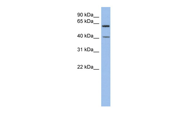 B3GALTL antibody - middle region (ARP49171_P050) in Human SH-SYSY cells using Western Blot