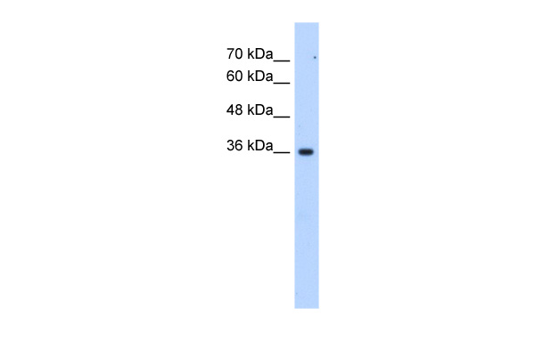 LOC339879 antibody - C-terminal region (ARP49242_T100) in Human Jurkat cells using Western Blot