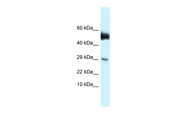 Amhr2 antibody - N-terminal region (ARP49527_P050) in Mouse Brain cells using Western Blot