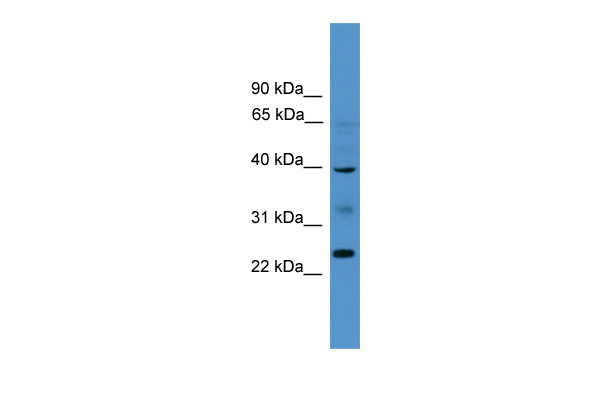 BTNL8 antibody - middle region (ARP49891_P050) in Human HT1080 cells using Western Blot