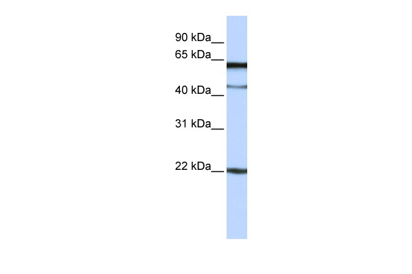 C6orf25 antibody - N-terminal region (ARP49948_P050) in Human Jurkat cells using Western Blot