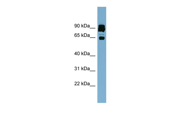 CLPTM1L antibody - middle region (ARP49959_P050) in Human ACHN cells using Western Blot