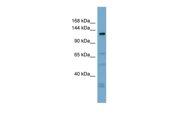 TMEM16C antibody - middle region (ARP49996_P050) in Human ACHN cells using Western Blot