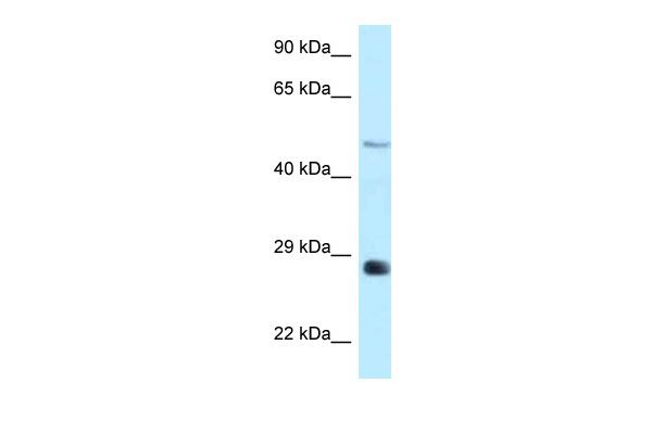 Agpat9 antibody - middle region (ARP50103_P050) in Rat Brain cells using Western Blot