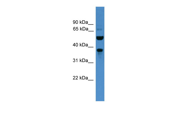 BEST3 antibody - C-terminal region (ARP50108_P050) in Human PANC1 cells using Western Blot