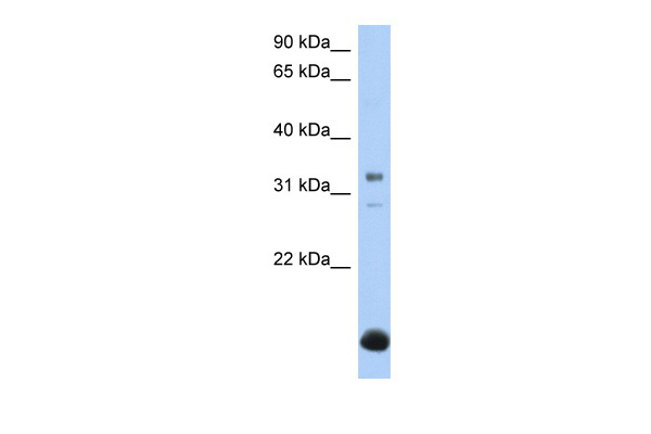 B3GALT6 antibody - N-terminal region (ARP50258_P050) in Human Liver cells using Western Blot