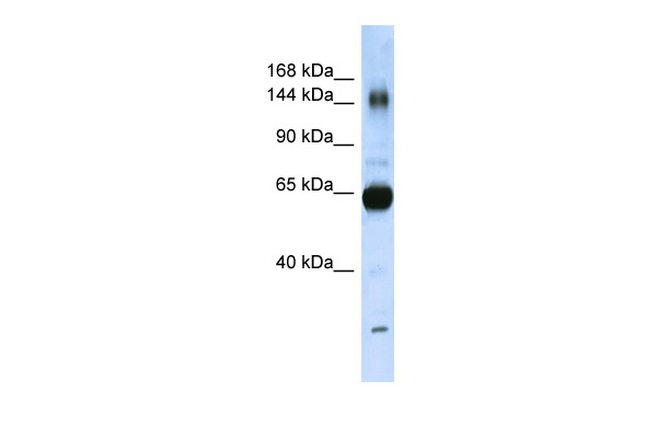 COL11A2 antibody - N-terminal region (ARP50265_P050) in Human Placenta cells using Western Blot