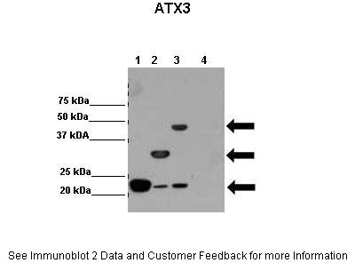 ATXN3 antibody - N-terminal region (ARP50507_P050) in Human cells using Western Blot