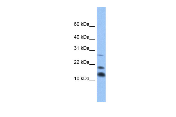 C1D antibody - middle region (ARP50534_P050) in Human Heart cells using Western Blot