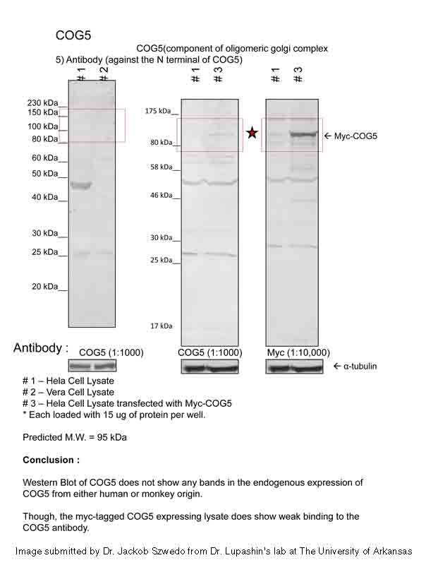 COG5 antibody - N-terminal region (ARP50535_P050) in Human, Mouse cells using Western Blot