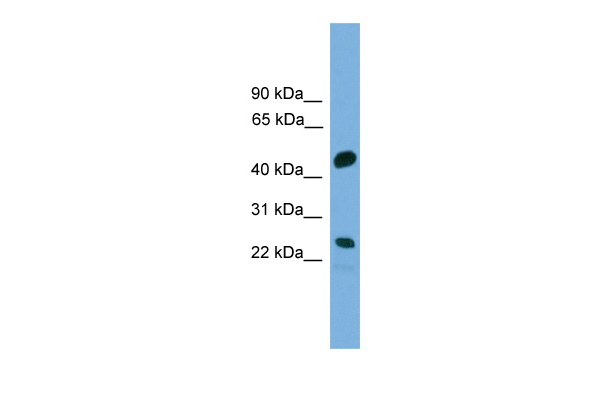 CDCA4 antibody - middle region (ARP50623_P050) in Human COLO205 cells using Western Blot