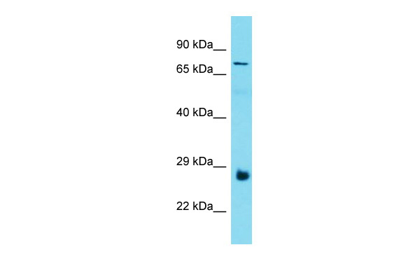 C19orf55 Antibody - N-terminal region (ARP51860_P050) in Human Thyroid Tumor cells using Western Blot