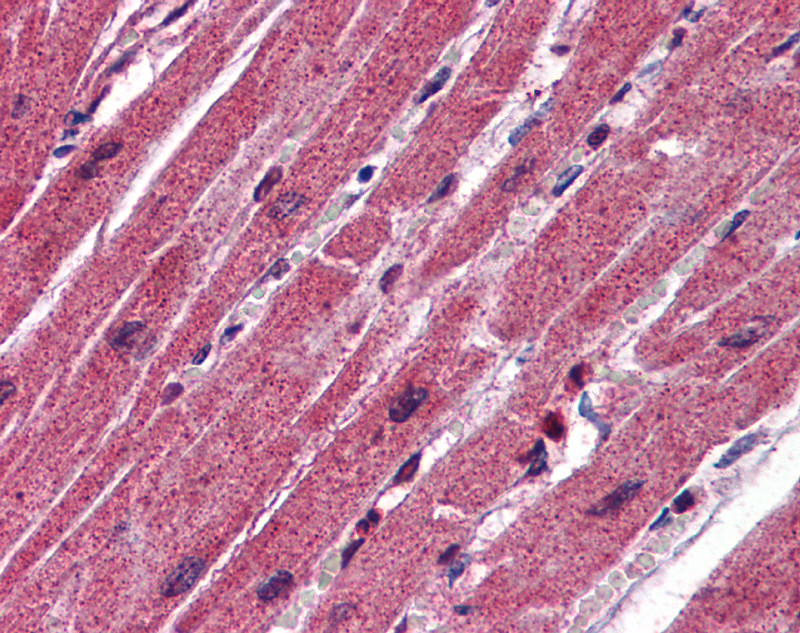 CPN1 antibody - middle region (ARP51939_P050) in Human Heart cells using Immunohistochemistry