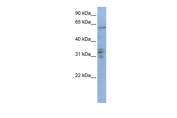 CENPB antibody - C-terminal region (ARP51969_P050) in Human Jurkat cells using Western Blot
