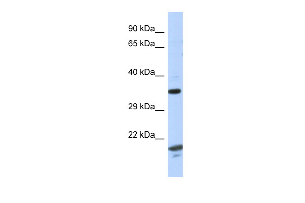 CHN1 antibody - C-terminal region (ARP51974_P050) in Human Fetal Thymus cells using Western Blot