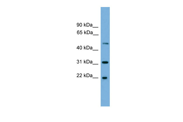 CRYBA4 antibody - middle region (ARP51978_P050) in Human 293T cells using Western Blot