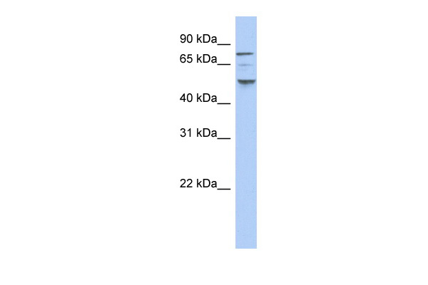 CSNK1E antibody - N-terminal region (ARP51987_P050) in Human THP-1 cells using Western Blot