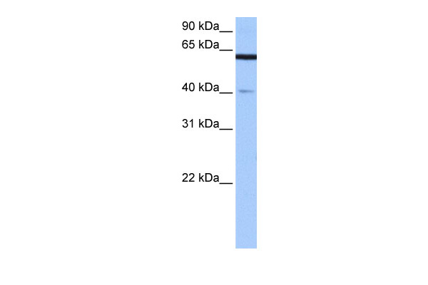 APPBP2 antibody - middle region (ARP52171_P050) in Human Brain cells using Western Blot