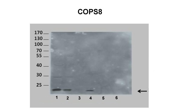 COPS8 antibody - middle region (ARP52242_P050) in Human, Mouse cells using Western Blot