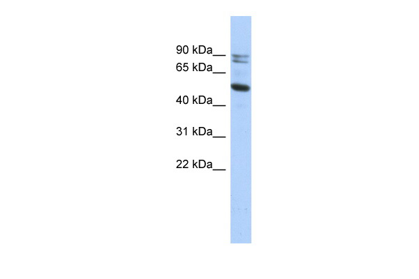 CAPN10 antibody - N-terminal region (ARP52404_P050) in Human HT1080 cells using Western Blot
