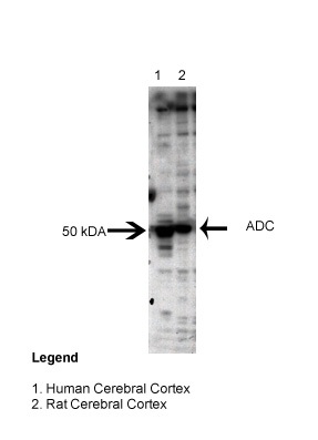 ADC antibody - middle region (ARP52476_P050) in Human, Rat cells using Western Blot
