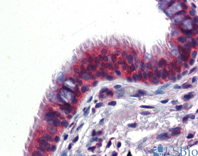 BMPER antibody - C-terminal region (ARP52569_P050) in Human Lung cells using Immunohistochemistry