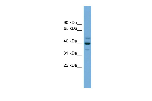 BNIPL antibody - middle region (ARP52577_P050) in Human OVCAR-3 cells using Western Blot