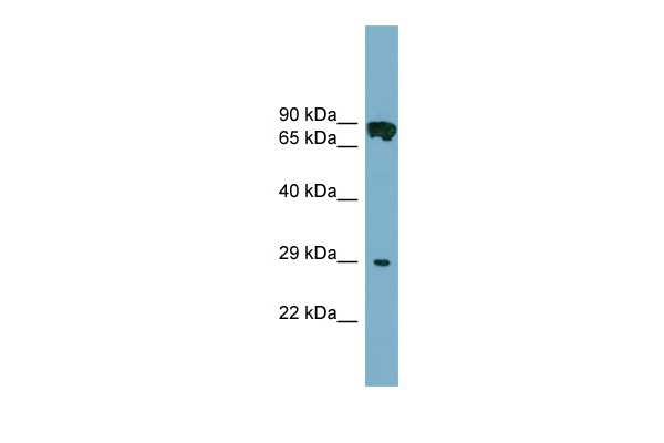 CYB5D1 antibody - middle region (ARP52699_P050) in Human COLO205 cells using Western Blot