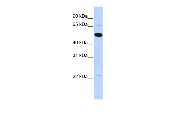 RP13-102H20.1 antibody - middle region (ARP52767_P050) in Human MCF-7 cells using Western Blot