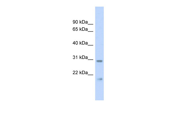 C1orf96 antibody - middle region (ARP52835_P050) in Human Heart cells using Western Blot