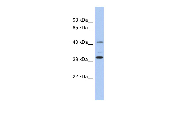 C11orf46 antibody - N-terminal region (ARP52879_P050) in Human OVCAR-3 cells using Western Blot