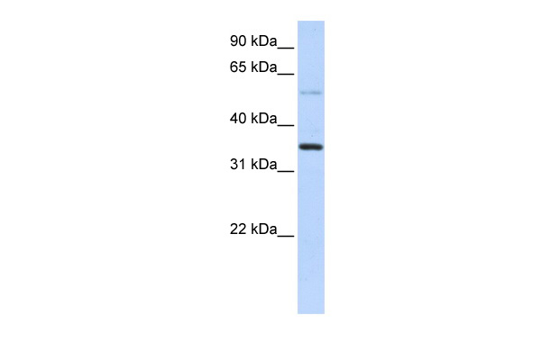 ANKRD9 antibody - middle region (ARP52888_P050) in Transfected 293T cells using Western Blot
