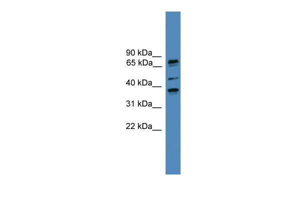 BBS5 antibody - N-terminal region (ARP52930_P050) in Human COLO205 cells using Western Blot