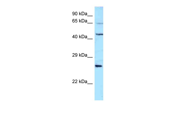 ALS2CR11 antibody - N-terminal region (ARP53022_P050) in Human 721_B cells using Western Blot