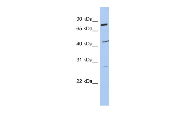 CCDC63 antibody - middle region (ARP53051_P050) in Human SH-SYSY cells using Western Blot