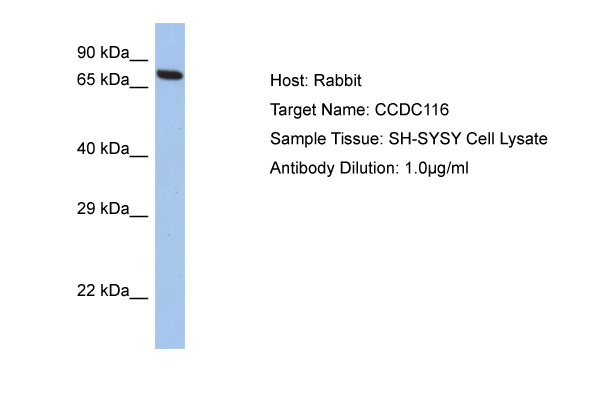 CCDC116 Antibody - C-terminal region (ARP53070_P050) in Human SH-SYSY cells using Western Blot
