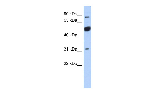 CXorf20 antibody - middle region (ARP53161_P050) in Human MCF-7 cells using Western Blot